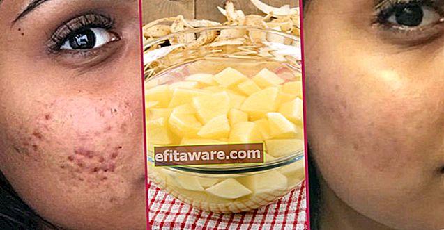 La pelle liscia non è un sogno: come passano le cicatrici da acne?