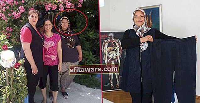 La storia piena di persecuzione di una donna di Izmir che ha perso 76 chili in un anno solo con la dieta