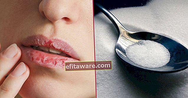 Non asciugare, rimanere sempre umidi: cosa è buono per le labbra screpolate?